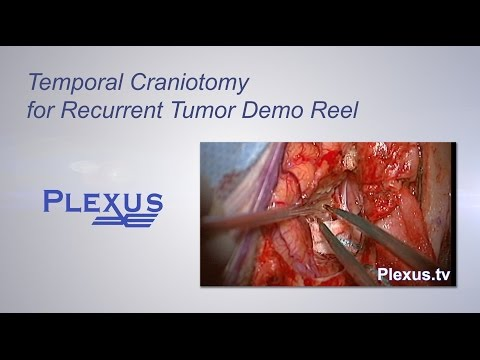 Temporal Craniotomy for Recurrent Tumor Video Demo