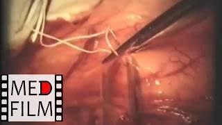 Хирургия язвенной болезни 12-перстной кишки © Surgery of peptic ulcer disease 12 duodenal ulcer