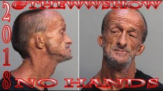 Miami Homeless Man With no Arms Charged With