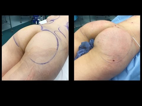 fat-transfer-to-buttock