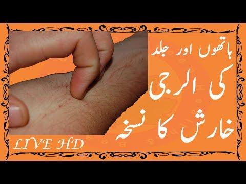 Elergy Problem Solution - Skin Problem Hand Elergy Also Full Body Elergy Use Home Made Remedy