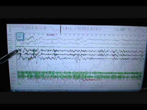 Sleep Study Scoring on Person with Severe Sleep Apnea and