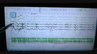 Sleep Study Scoring on Person with Severe Sleep Apnea and snoring. Polysomnograph