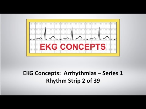 EKG Concepts: Arrhythmias Course - Strip 2 of 39