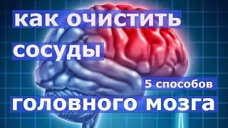 5 способов очищения сосудов головного мозга.