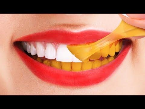 Cara Menghilangkan Komedo Secara Alami - Dengan Pasta Gigi.