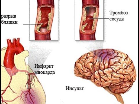Инсульт головного мозга - что это такое, виды, диагностика