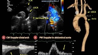 What is an aortic dissection?   Circulatory System and Disease   NCLEX-RN   Khan Academy.