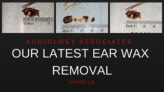OUR LATEST EAR WAX REMOVAL COMPILATION - EP 126