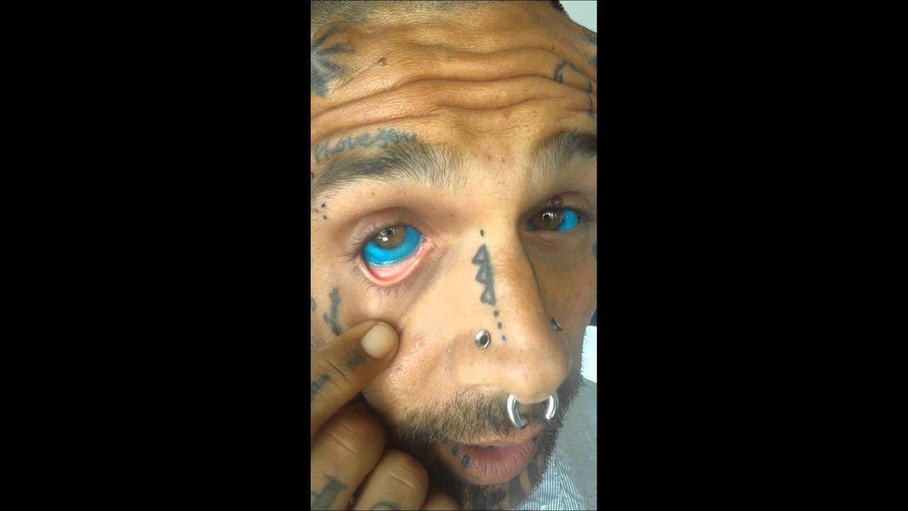 prove that alkaline eye