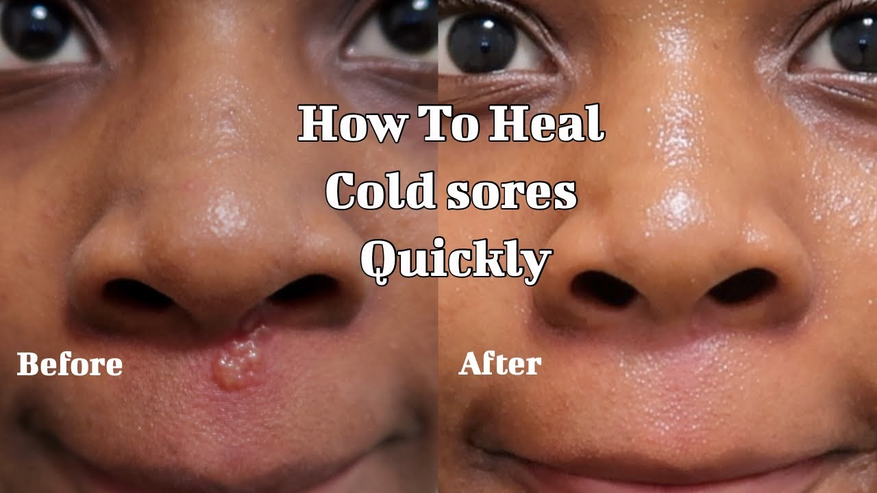 How to heal Cold sores quickly  Fast recovery  realistic way to treat breakouts Baby powder