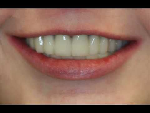 rigby-advanced-dental-ectodermal-dysplasia-implant-rehab