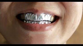 ★Надень фольгу на зубы на 15 минут.Отбеливание зубов в домашних условиях с солью и содой
