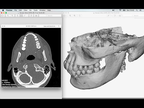 CT Scan DICOM Files to 3D [HD]