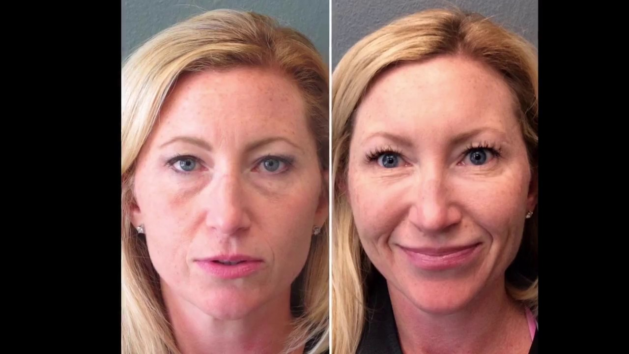 Demonstration of Juvederm under eyes