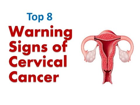 Warning Signs of Cervical Cancer | Signs and Symptoms of Cervical Cancer | Top 8