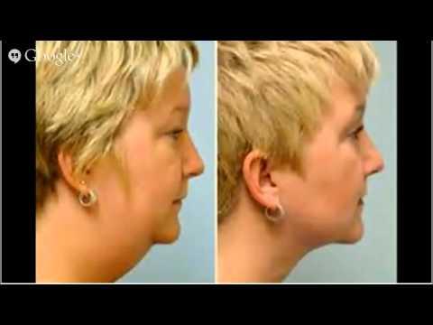 How Much Does Liposuction Cost Liposuction, Lipo, HD Lipo,