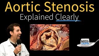 aortic stenosis explained clearly