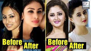 Television Actress Who Opted For Lip Surgery