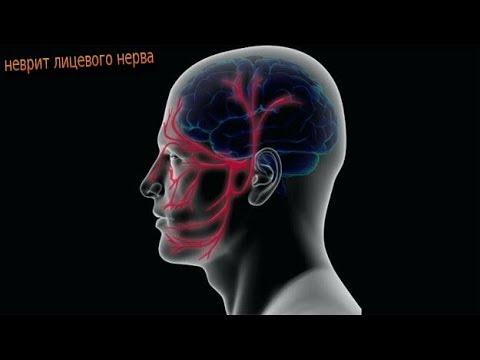 неврит лицевого нерва ,  лечение  ,  о болезни  ,  упражнения при болезни