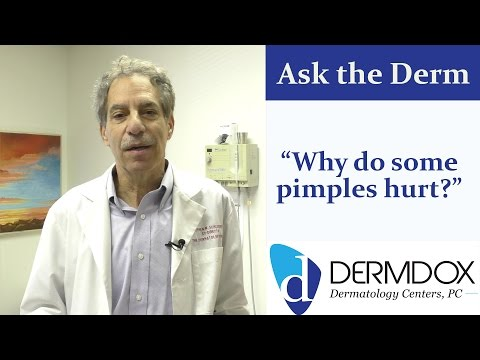 hqdefault - What Causes Pimples To Hurt