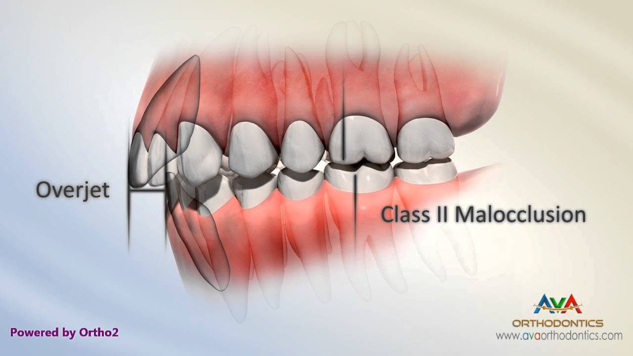 Overjet (AKA Overbite) - Class II End On Malocclusion ...