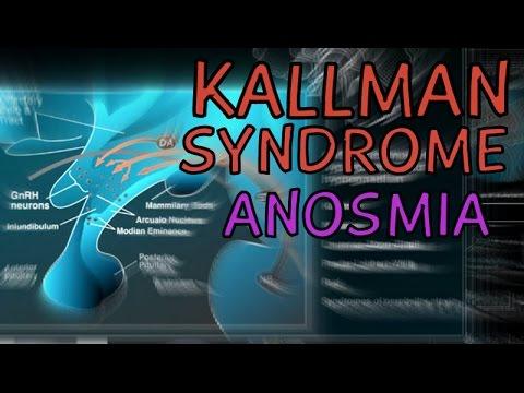 Cranial Nerves - CI - Olfactory Nerve Disorders - Kallman Syndrome
