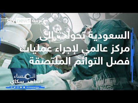 السعودية تحولت إلى مركز عالمي لإجراء عمليات فصل التوائم الملتصقة  - نشر قبل 3 ساعة