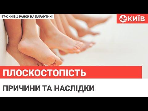 Телеканал Київ: Плоскостопість: профілактика і лікування