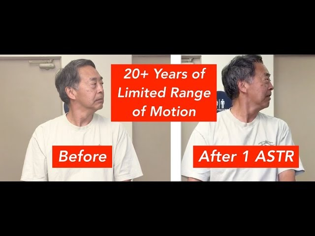 Chronic Neck Limitation Was Relieved in 1 Treatment!