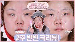 *[요청] 드~디어 올라온 홍조 리뷰!!⚠️ 2주간 반만 바름!