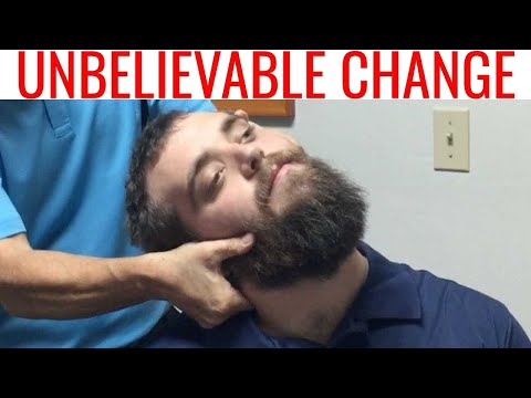 Part 2 - Chiropractor helps CEREBRAL PALSY patient. This is AWESOME!