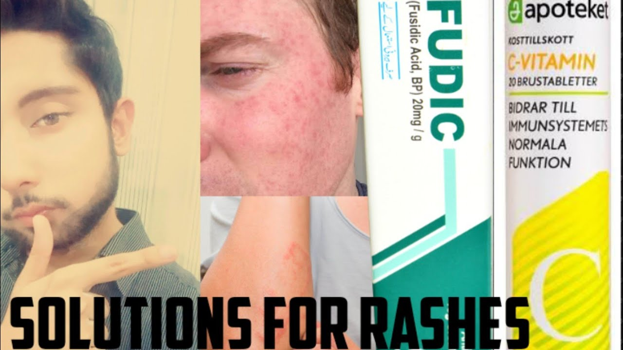 Fusidic Acid Cream Review It S Uses Side Effects Vitamin C For Skin How To Reduce Skin Rashes Youtube