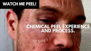WATCH ME PEEL! MY CHEMICAL PEEL EXPERIENCE AND PROCESS OF TCA ACID CHEMICAL PEEL