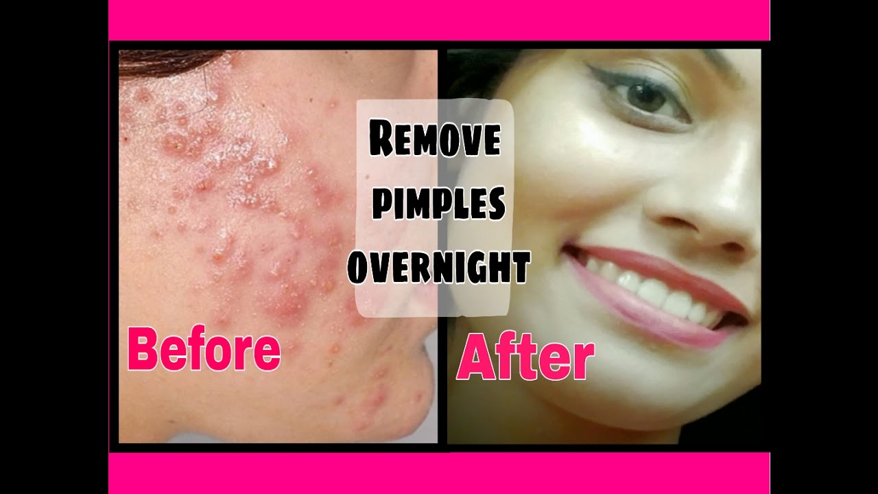 Remove Pimples Acne Overnight Remove Dark Spots Acne Scars