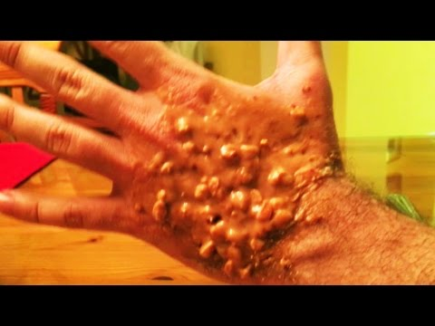 Trypophobia Hand What Is It Youtube