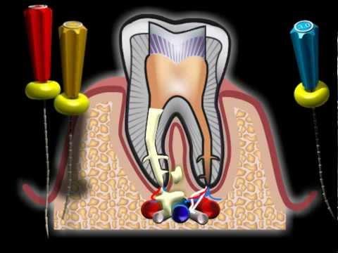 Корень зуба болит