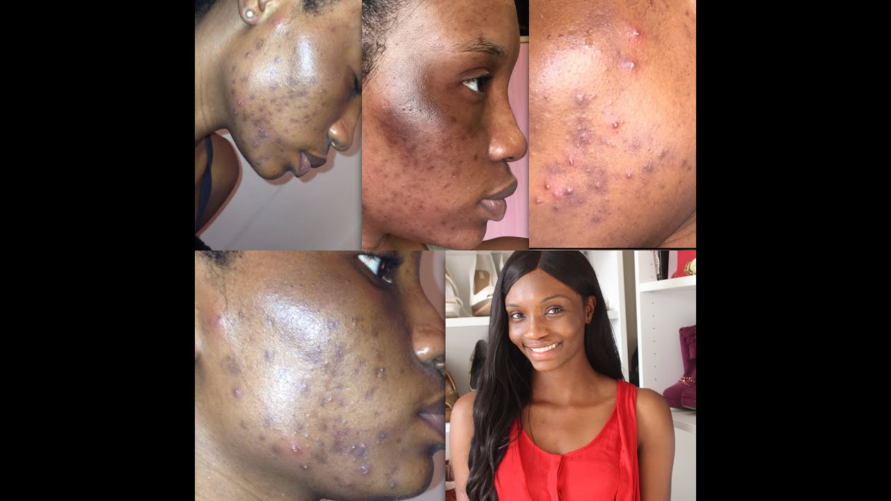 From Severe Acne To Clear Skin My Acne Journey Part 1