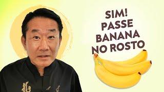 De bananas varizes