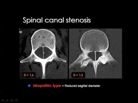 Spinal imaging Degenerative diseases Prof Dr. Mahmdouh Mahfouz