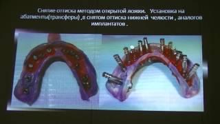 видео Протезирование на имплантатах