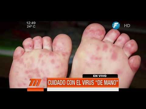 """Cuidado con el virus """"de mano"""", se presentan con fuerza en niños"""