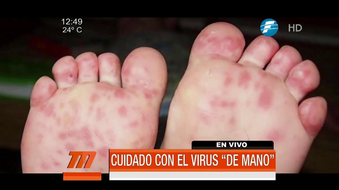 manos y rodillas moradas