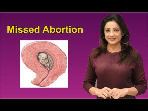 missed-abortion-क्या-होता-हैं?