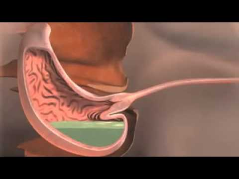 Are There Healthy Reasons Why The Valve Involved In GERD Opens
