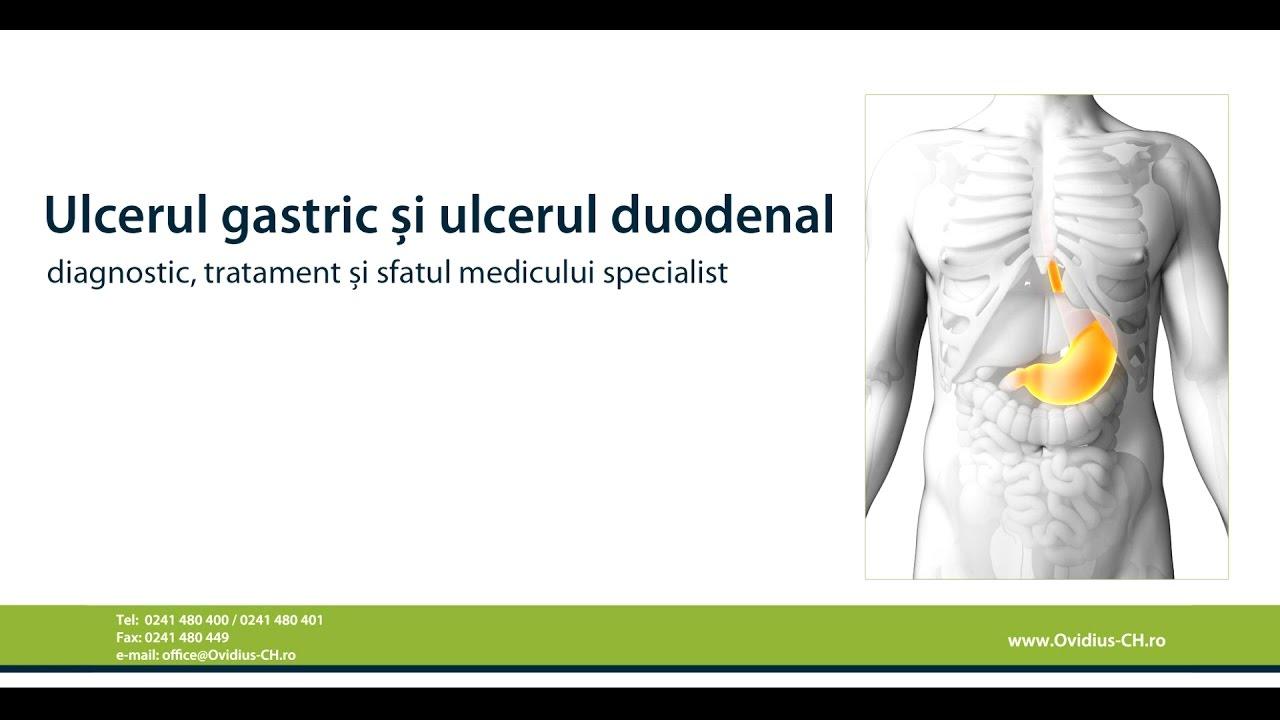 ulcer duodenal perforat