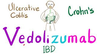 Inflammatory Bowel Disease - Crohns and Ulcerative Colitits.
