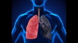 무시해서는 안 될 폐렴 증상 8가지