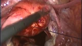 Repeat youtube video Reparo Intestinal em Acidente por Curetagem Uterina - GASTROMED / Instituto Zilberstein