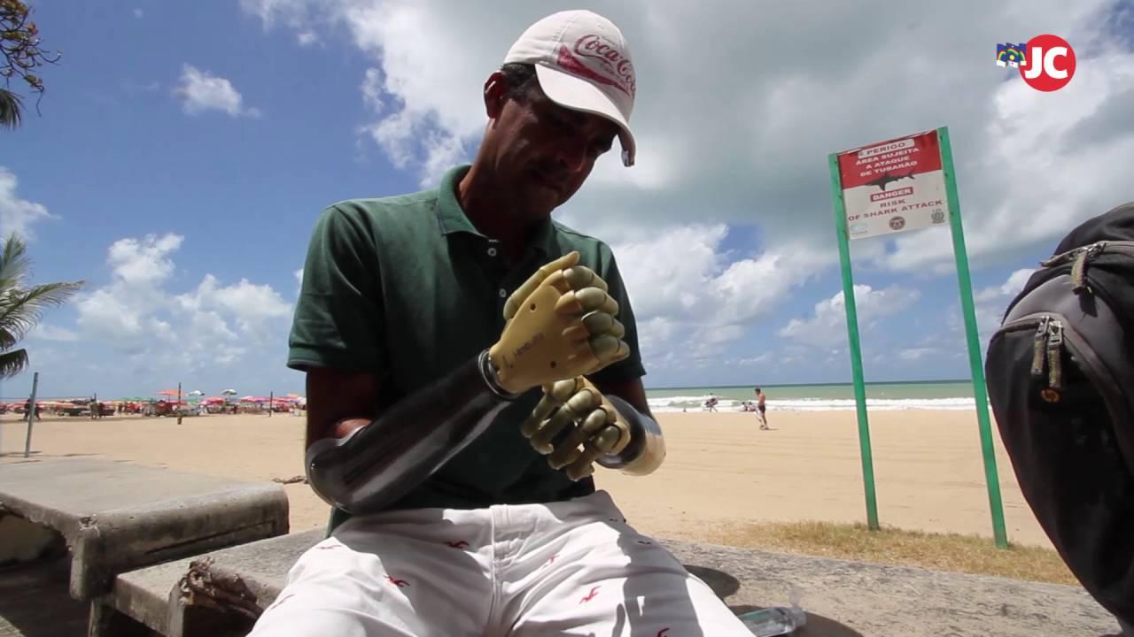 Vítima de ataque de tubarão pede ajuda para manter próteses
